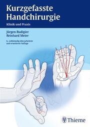 Kurzgefasste Handchirurgie