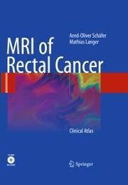 MRI of Rectal Cancer