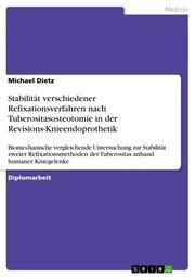 Stabilität verschiedener Refixationsverfahren nach Tuberositasosteotomie in der Revisions-Knieendoprothetik