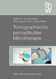 Tomographische periradikuläre Mikrotherapie